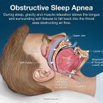 Are You Suffering from Any of These Kinds of Sleep Apnea?