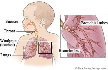 Respiratory trouble